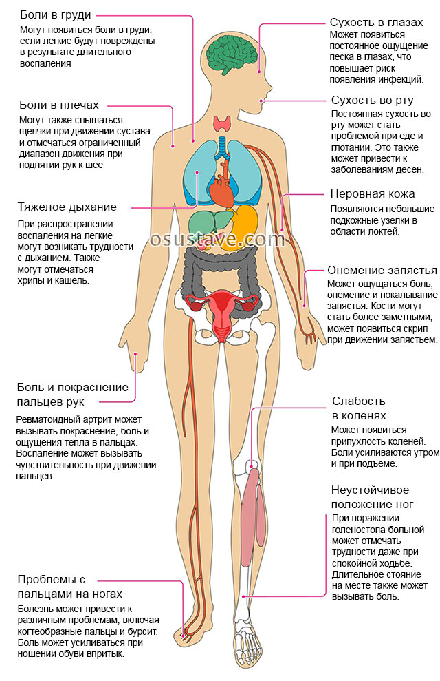 Mis on liigeste harjade artroos kuunarnuki liigese tootlemise lihaste venitamine