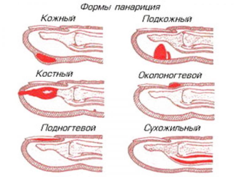 Folk oiguskaitsevahendid ravi artriidi sormede kaes