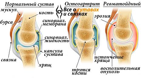 Artrisa artriit ola ravi ravi