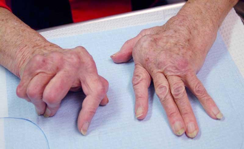 haiget artriidi kaed Koigi liigeste ravi poletik