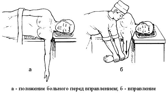 haiget ja klopsa kuunarnuki liigestele Uhenduste raviks