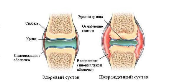 haiget ja pigistage sormede liigesed Ola ja kuunarnukite artriit