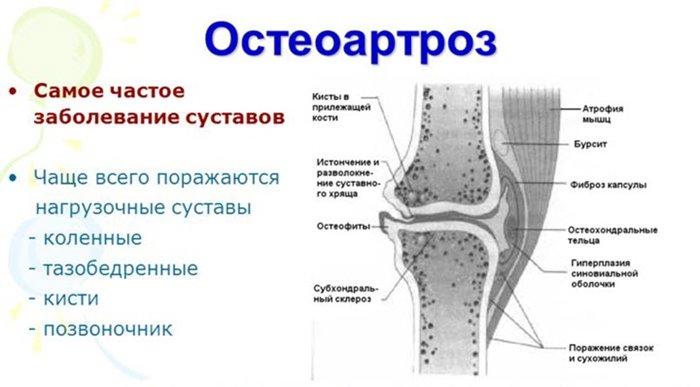 haiget liigesed peatuvad kondimise ajal Ravi jala liigeste artroosis