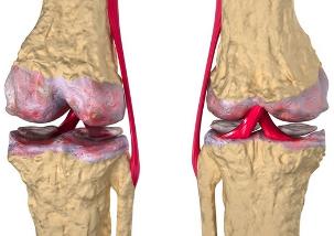 Osteopaatia liigeste poletik valutab ola all