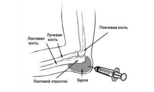 Haigused kuunarnuki liigese ja nende ravi Bursita