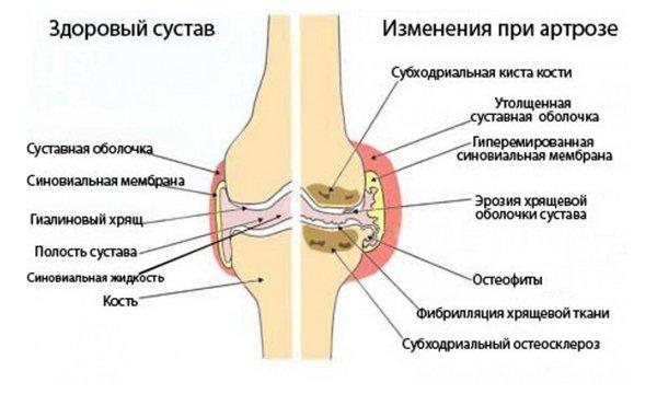Vaike jala liigesed haiget Inimeste meetodid liigeste raviks