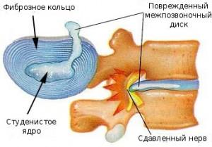 Pusiv valu murgistus Suurete liigeste ja lihaste valu pohjused