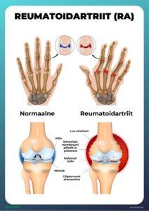 Kui reumatoloogid kohtlevad artriiti