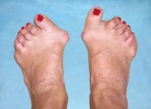 Hoidke oma jalad polved