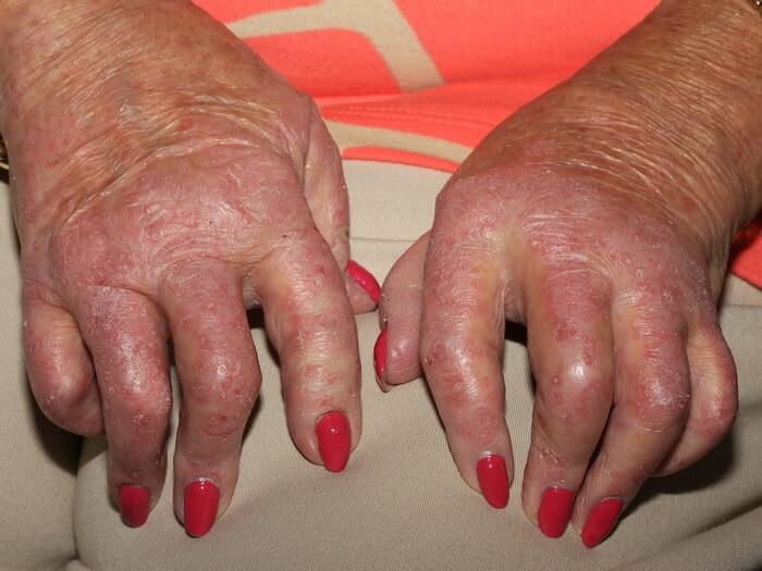 Kuidas ravida artriidi folk meetodeid
