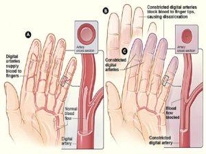 Kuidas ravida valu jala ja polvede jalgade liigestes Saarased ja kondimine