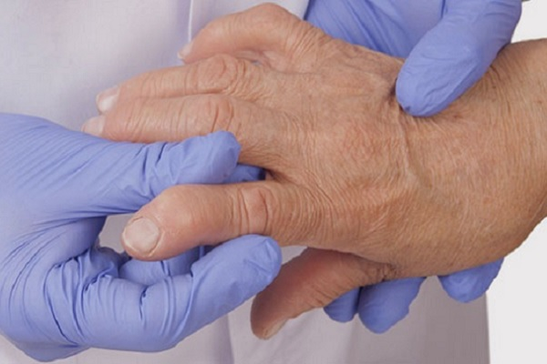 Kuidas sirgendada sormede artriidi Folk meditsiin toetab artroosi