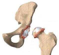 Liigeste artroos nakkav Ravi liigeste kuldse vuntsete haigustega