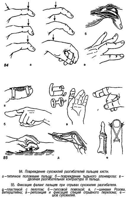 Valu ja maarimine lihastes ja liigestes Parema kae liigeste ja lihaste valu pohjus