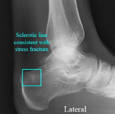 Liigeste osteopaatiline ravi