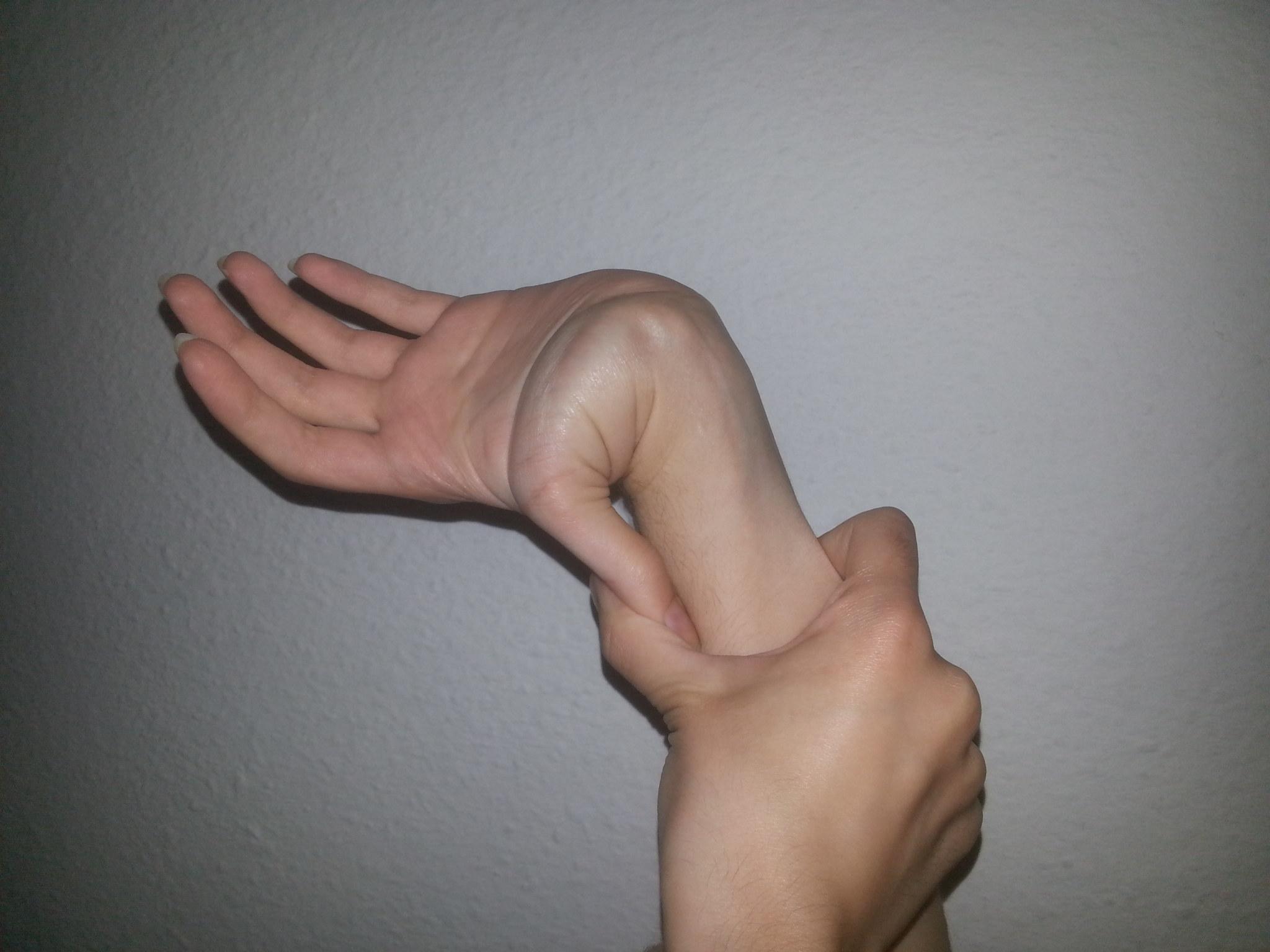 Odav salv liigesed ja lihased Artroosi parast murdumist