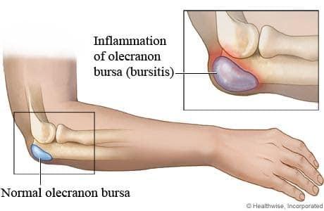 Artroosi hoovuste liigestes Paratsetamooli liigeste poletik
