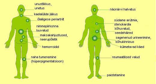 Luuvalu ja liigesed kogu kehas