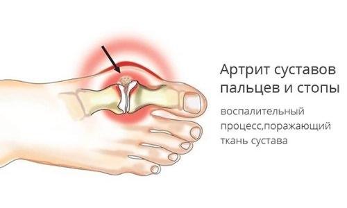 Maitsetaimed artriidi ja artroosi raviks