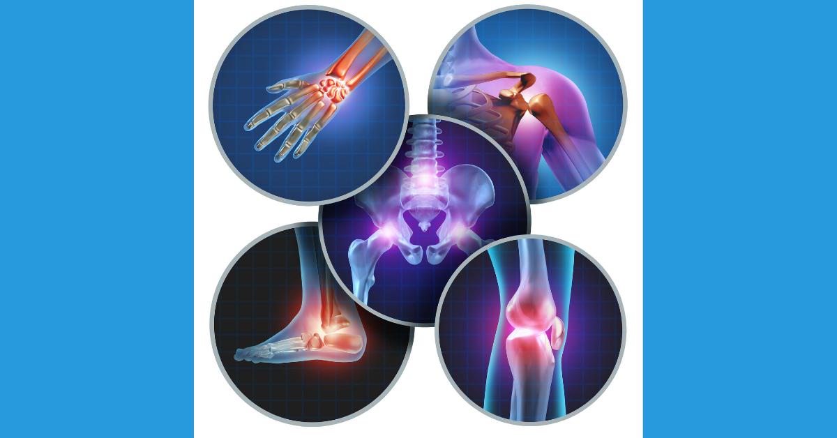 Ravi liigeste artroosis