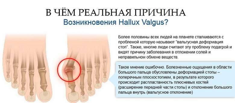 Mida teha jalgsi liigeste poletikuga Pluss-phalangeaalne haigus