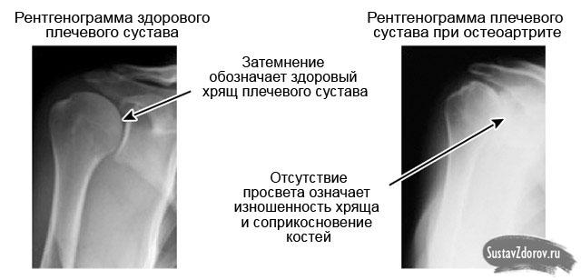 Mida teha ola liigese artroosiga