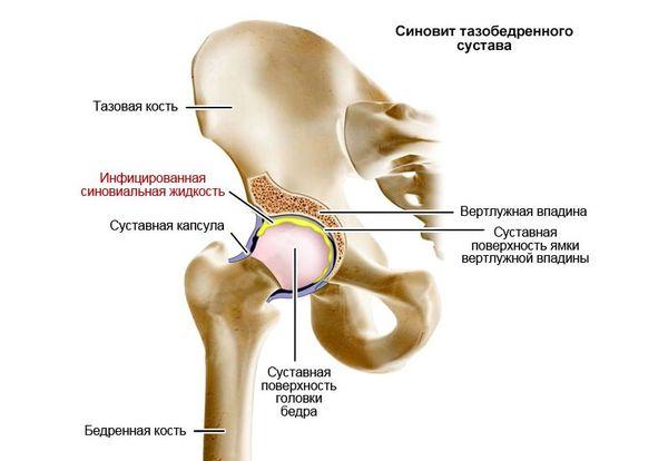 Artroosi valu liigestes