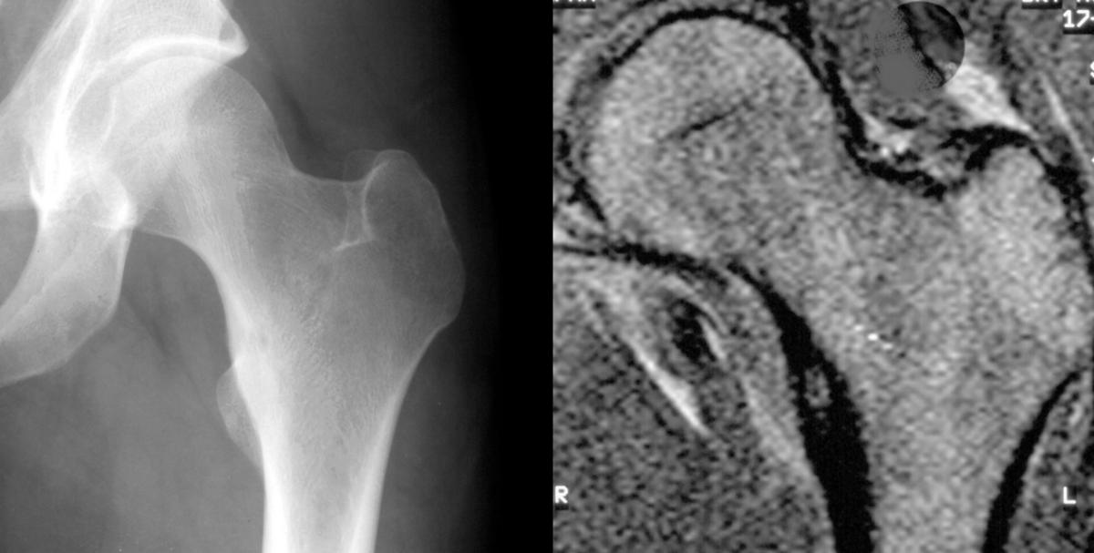 Artroosi ravi oli jargi Liigeste delfiinide tootlemine