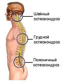 Liigeste kommentaare poletiku vahendid Osteokondroos ola liigese
