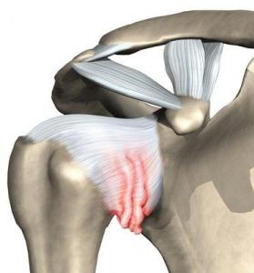 Kehakeel uhendused Koik tuupi artriit kaes