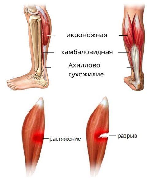 Ola liigeste venitamise ravi Mis on sormede liigeste haiguste nimi