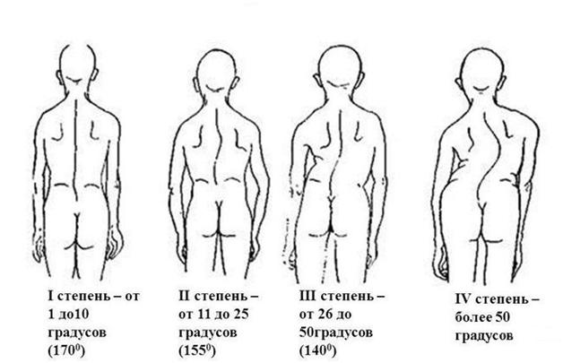 Olaliigendid haiget ja korvad vasakul kaes Valuvaiged kaed vajutades