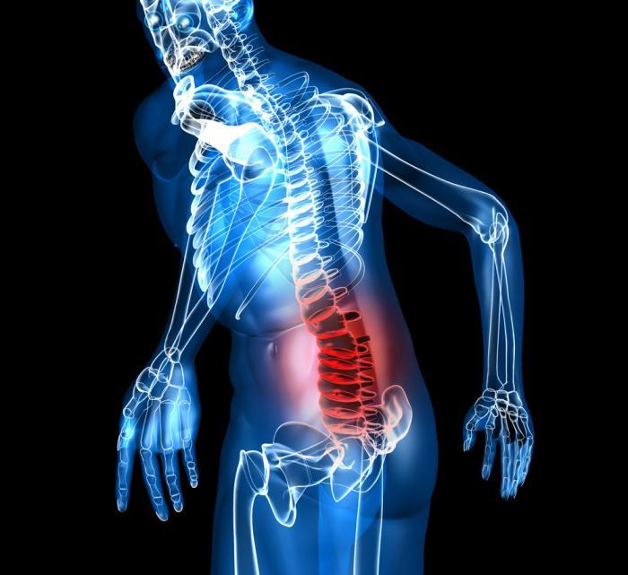 Osteokondroosi kaasaegsed vahendid