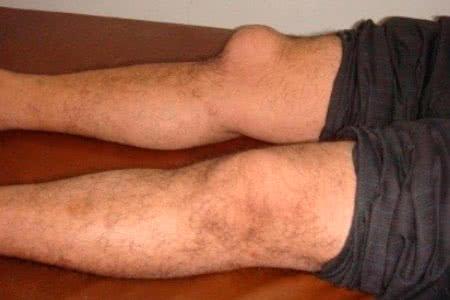 Haigus, kui liigesed Lomit Vitamiinide artroosi ravi