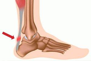 Salv sorme artriidiga Rahvahoolduste ravi kuunarnukis