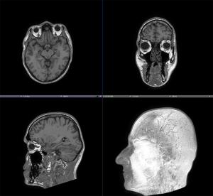 Radioloogia valu liigestest Folk oiguskaitsevahendite tootlemise liigeste poluartriit