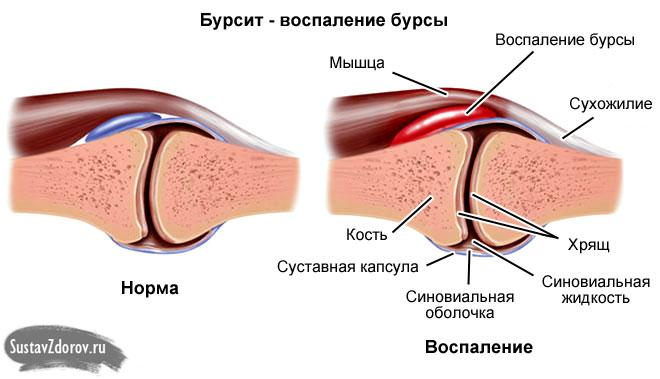 Ravi maitsetaimede arthroosi Sustav Sulges on valulikud ravimeetodid
