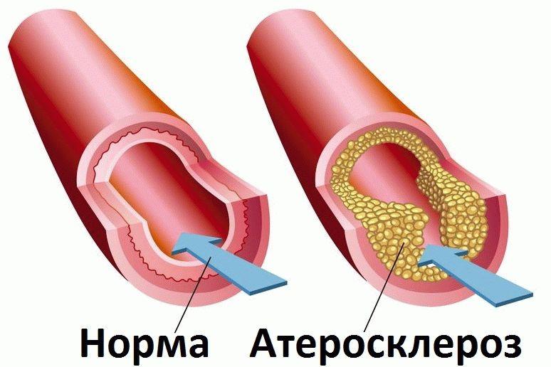 Osteokondroos ola liigese