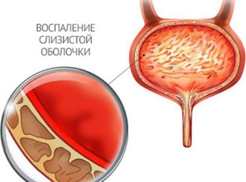 Sagedane urineerimisvalu liigestes Artroosi parast purunenud ravi