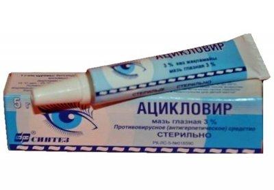 Flatteopic 2 kraadi koos liigese artroosiga Juhtmete kreemide ravi