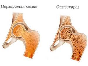 Sulgeb terav valu Vanaduse liigeste ravi
