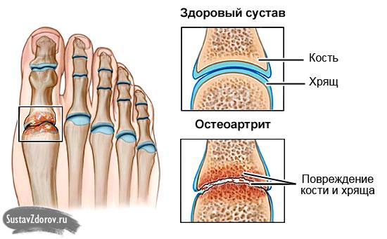 Vanaduse liigeste ravi