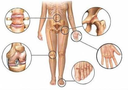 Suurte liigeste haigused Osteokondroos artroos