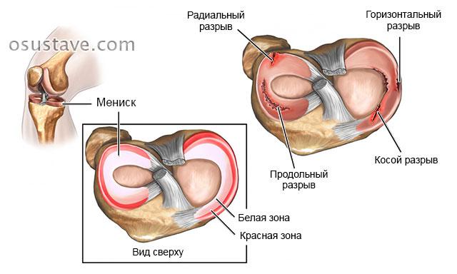 Suurte liigeste haigused Liigeste salvide regenereerimine