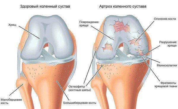 Suurte liigeste ravi artroos Kate artriidi esialgne etapp