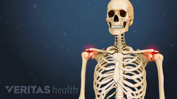 Valuvaiged kaed vajutades salvi voi geeli liigestega valud
