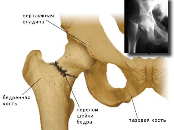 Sissejuhatus geeli liigese Artroosi ravi ja ennetamine