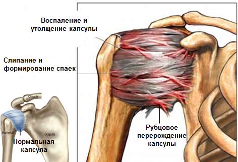 tuimus kaes ja liigesevalu