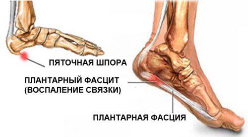 Valu jala salvi jalamil Puelonefriidi valu liigestes
