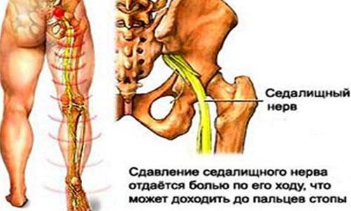 Osteokondroos kasitsi ravi ajal folk oiguskaitsevahendeid teravalt valutab harja